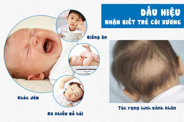 5 trường hợp trẻ CÒI XƯƠNG giai đoạn 2 đã bị chậm phát triển cần lưu ý-2