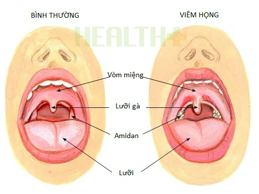 4-dau-hieu-khac-biet-giup-nhan-biet-tre-bi-viem-hong-vi-hay-virus-2